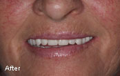 Cosmetic Dentures Before After Photos